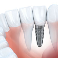 Dental Implants, Dentist West Kelowna
